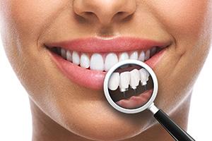 implant dentar cu laser in bacau
